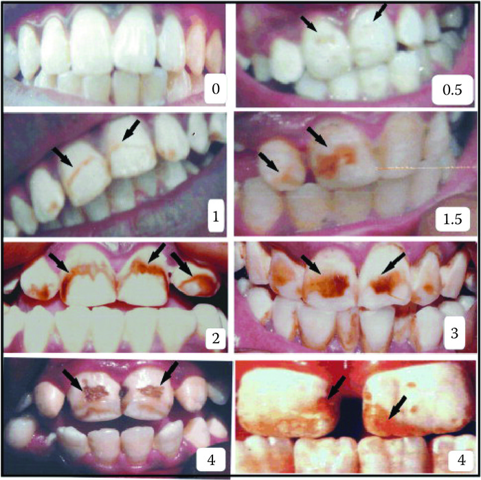 Dental fluorosis symptoms as per Dean's classification. (From Viswanathan, G., Jaswanth, A., Gopalakrishnan, S., Ilango, S. S. and Aditya, G.,