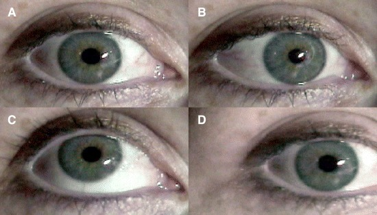 The corneal reflections produced by different eye–head positions. The                         corneal reflection appears as a bright white dot, just to the side of the                         pupil (A). The relative positions of the pupil and the corneal reflection                         change when the eye rotates around its vertical (B) and horizontal (C) axes.                         This relationship does not change, however, when the head moves and the eye                         is stable (compare A and D).